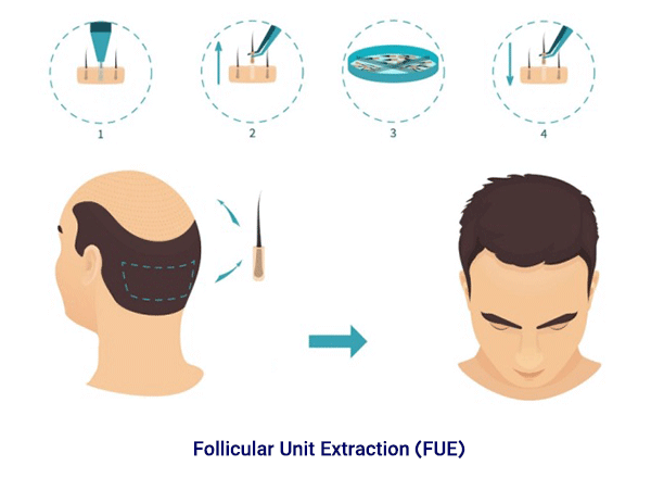 fue hair transplant technique