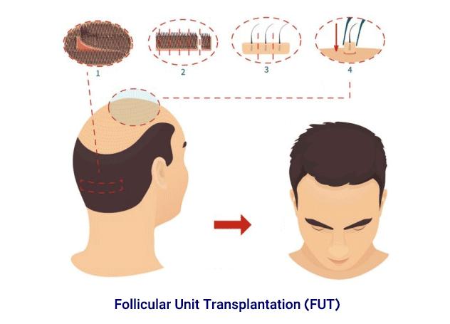 fut hair transplant technique