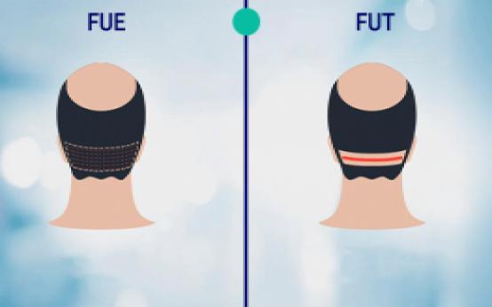 طرق زراعة الشعر: ما هي أفضل طريقة لزراعة الشعر؟